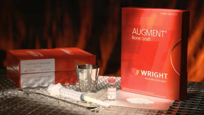 AUGMENT® Physician Testimonial Video - Adequate Graft Fill [MKS442]