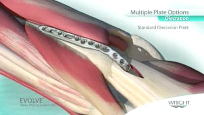 EVOLVE™ Elbow Plating System (EPS) Design Theory 3 - Proximal Ulna (Olecranon) - Graham King, MD [SO052-111_3]