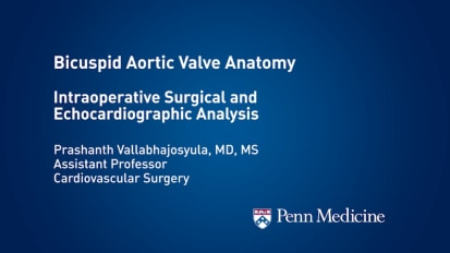 Bicuspid Aortic Valve Anatomy:</br> Intraoperative Surgical and Echocardiographic Analysis