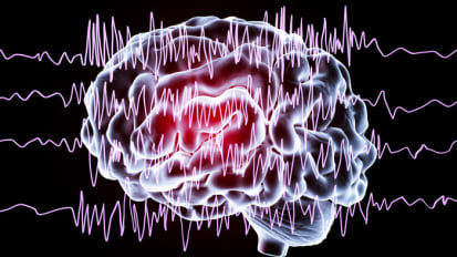 Deep Brain Stimulation for Epilepsy at Emory Brain Health Center