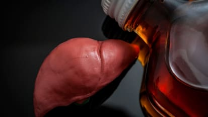 Alcohol Relapse Rate Among Liver Transplant Recipients Identical Whether or Not There is A 6-Month Wait Before Transplant