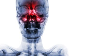 Muscle Gene Mutations Implicated in Human Nasal/Sinus Cancer