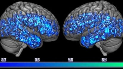 Brain Scan Study Adds to Evidence That Lower Brain Serotonin Levels are Linked to Dementia