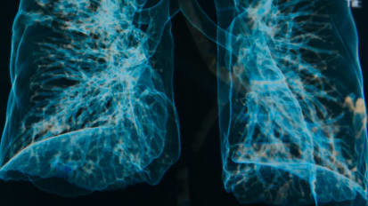 Unraveling Causes and Finding Treatments for COPD