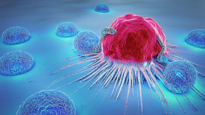 Making Anal Cancer Screening a Priority for High-Risk Patients