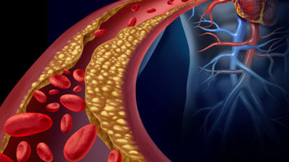 Reducing Inflammation After Heart Attacks May Prevent Secondary Events
