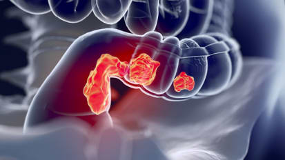Innovative Approaches to Colorectal Surgery Benefit Patients