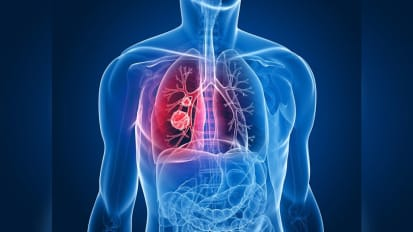 FDA Approves Drug to Treat Non-small Cell Lung Cancer