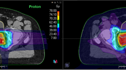"Proton Therapy Hypofractionation for Prostate Cancer</br><p style=""font-size: 1.5rem; line-height: 1.75rem;"">An effective option that reduces the length of radiation treatment in a young patient with early-stage prostate cancer</p>"
