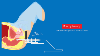 Guided Brachytherapy Delivers Targeted Treatment for Gynecologic Cancers