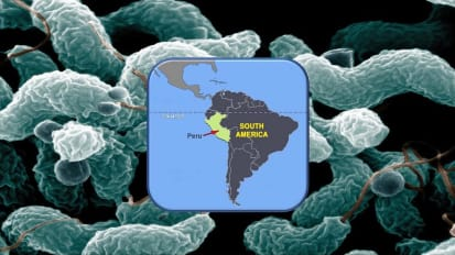 Johns Hopkins Medicine Helps Find Cause of Guillain-Barre Syndrome Outbreak in Peru