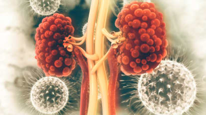 Johns Hopkins Research Shows Potential for Cure for Polycystic Kidney Disease