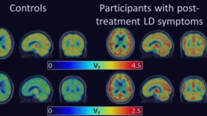 PET Imaging of Glial Activation in Patients with Post Treatment Lyme Disease