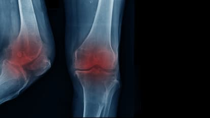 Association of patella alta with worsening of patellofemoral osteoarthritis-related structural damage: data from the Osteoarthritis Initiative.