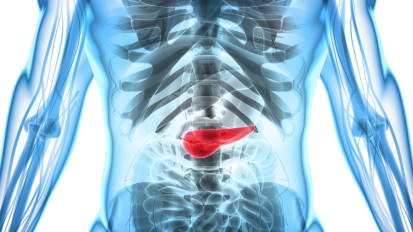 Are Functional Bowel Disorders Often Mistaken for Chronic Pancreatitis?
