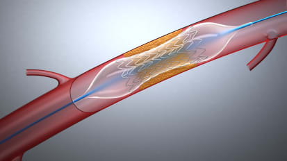 Expanded Options for Treating Peripheral Artery Disease