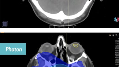 Proton Therapy for Skull Base Tumors