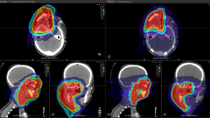 Proton Therapy Radiation Benefits Woman with Rhabdomyosarcoma