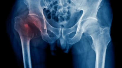 Hip Fractures May be an Early Sign of Alzheimer's Disease for Older People
