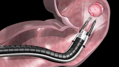 Johns Hopkins Among First to Offer Flexible Robotic Endoscopy