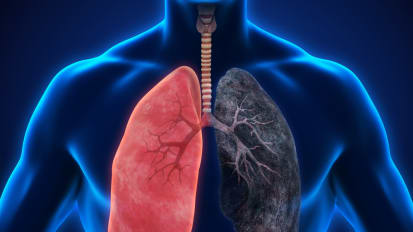 Lung cancer program puts the emphasis on personal