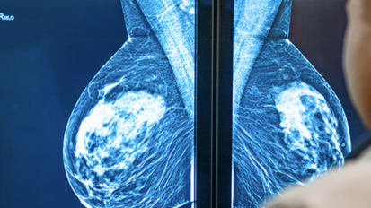 Breast Cancer Indications for Mastectomy and Reconstruction Options