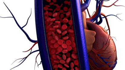 10th Annual Update on Vascular Disease: SESSION TWO
