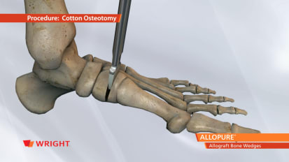ALLOPURE™ Allograft Bone Wedges Animation. Specific for Evans and Cotton Osteotomies [009117]