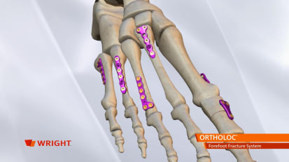 ORTHOLOC™ Forefoot Fracture System Animation [009239]