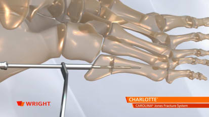CHARLOTTE™ CAROLINA™ Jones Fracture System Animation [009241]