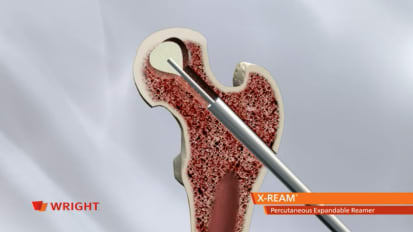 X-REAM® Percutaneous Expandable Reamer Advanced Core Decompression Animation [009272]
