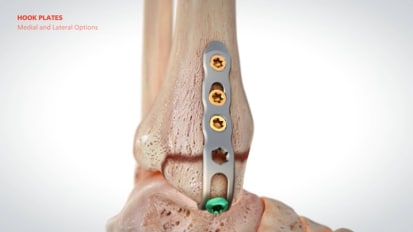 ORTHOLOC™ 3Di Ankle Fracture LP System Animation [015666]