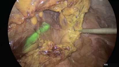 IMAGE1 S™ Rubina™ Laparoscopic Lower Anterior Resection
