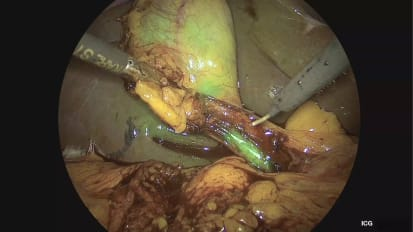 IMAGE1 S™ Rubina™ Laparoscopic Cholecystectomy