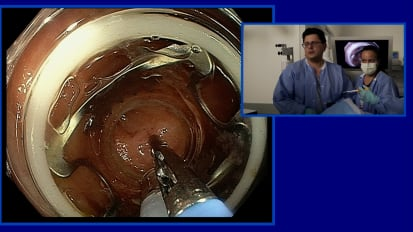 2019 LI Live: Live Endoscopic Procedures - Afternoon Part 2 of 2
