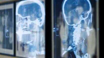 Headache: Secrets for Neurology Residents - BroadcastMed