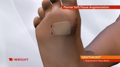 GRAFTJACKET™ Regenerative Tissue Matrix Plantar Animation [009127]