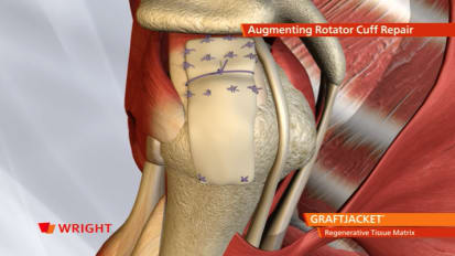 GRAFTJACKET™ Rotator Cuff Animation [009131]