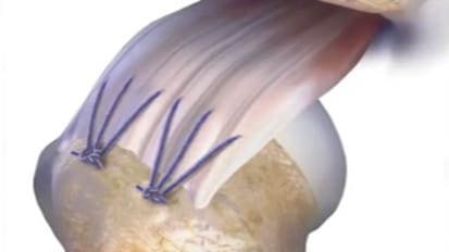 Resorbable Suture Animation featuring PHANTOM™ FIBER High Strength [CAW-6604]