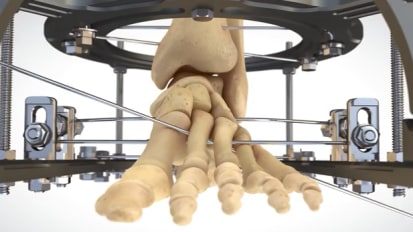 External Fixation Midfoot Animation featuring SALVATION™ [014623]
