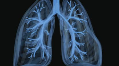 Overview of Lung Transplantation and Post-Transplant Care