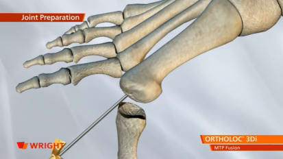 ORTHOLOC™ 3Di Foot Reconstruction System MTP Fusion Plate Animation [009116]