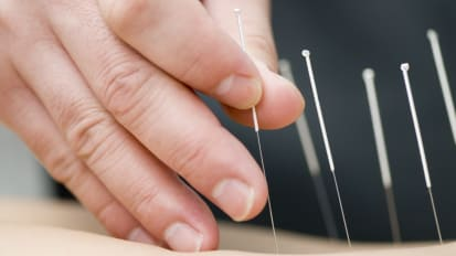 Evidence-Based Acupuncture For Cancer Patients