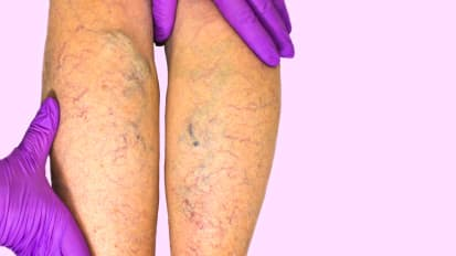 Chronic Venous Insufficiency: Caring for a Common and Disabling Condition