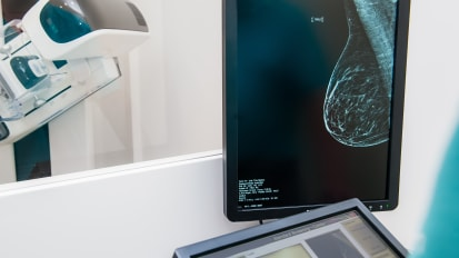 The Future of Breast Imaging at NorthShore