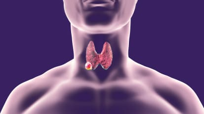 Thyroid Cancer: Incidence, Diagnosis, and Treatment