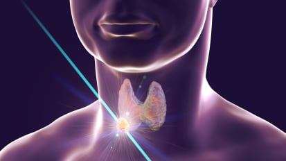 Management of Thyroid Nodules | Penn Medicine