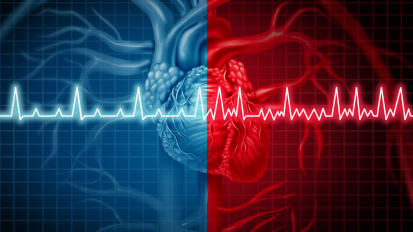 Advanced Treatment of Atrial Fibrillation