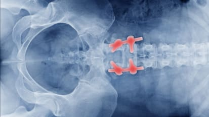 Complex Spine Surgery: Secrets of Successful Closure