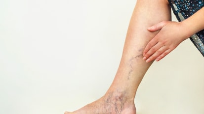 Veins, Venous Insufficiency and Varicose Veins